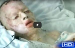 Young Boy Who Was Brutally Abused