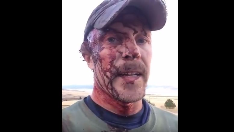 MAN SURVIVES BRUTAL BEAR ATTACK AND DESCRIBES IT MOMENTS LATER