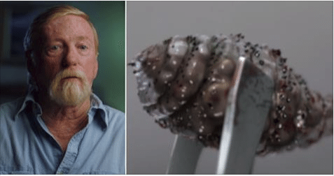 Surgeons Discover Maggot Living in Man's Body – And You Won't Believe Where They Found It