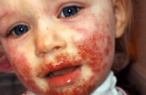 Toddler Breaks Out In Bleeding Blisters After Being Kissed By A Family Member