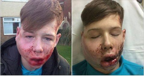 Family release shocking photos of bullied teen attacked on his way home from school