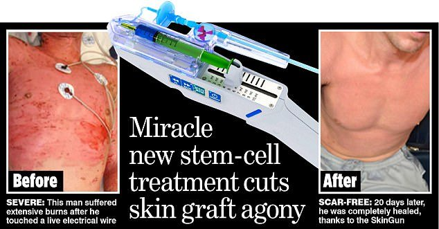 magic spray guns to help skin
