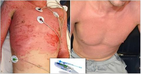 """""""Magic"""" skin gun sprays stem cells on to the victim's wounds to grow new skin"""