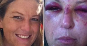 Daycare mom beaten
