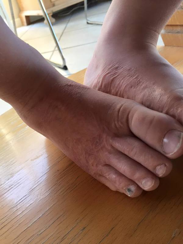 3 yr-old almost loses toes after game at the beach