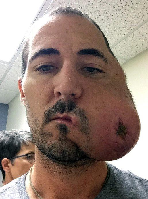 Cancer eats half of man's face-03
