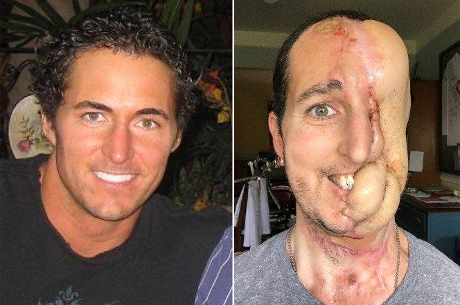Cancer eats half of man's face